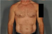 Male Breast Reduction After Photo by Ellen Janetzke, MD; Bloomfield Hills, MI - Case 37596