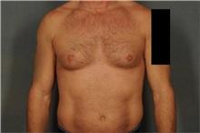 Male Breast Reduction Before Photo by Ellen Janetzke, MD; Bloomfield Hills, MI - Case 37596