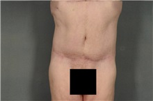 Tummy Tuck After Photo by Ellen Janetzke, MD; Bloomfield Hills, MI - Case 37603