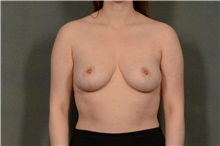 Breast Reduction After Photo by Ellen Janetzke, MD; Bloomfield Hills, MI - Case 37834