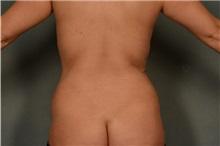Liposuction After Photo by Ellen Janetzke, MD; Bloomfield Hills, MI - Case 37837