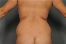 Liposuction Before Photo by Ellen Janetzke, MD; Bloomfield Hills, MI - Case 37837