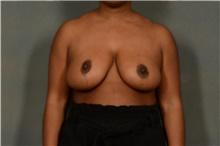 Breast Reduction After Photo by Ellen Janetzke, MD; Bloomfield Hills, MI - Case 38859