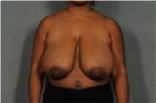Breast Reduction Before Photo by Ellen Janetzke, MD; Bloomfield Hills, MI - Case 38859