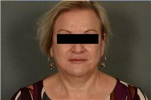 Liposuction After Photo by Ellen Janetzke, MD; Bloomfield Hills, MI - Case 39555