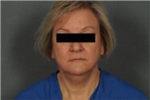 Liposuction Before Photo by Ellen Janetzke, MD; Bloomfield Hills, MI - Case 39555
