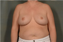 Breast Reduction After Photo by Ellen Janetzke, MD; Bloomfield Hills, MI - Case 40909