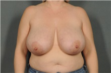 Breast Reduction Before Photo by Ellen Janetzke, MD; Bloomfield Hills, MI - Case 40909