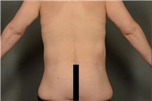 Body Lift After Photo by Ellen Janetzke, MD; Bloomfield Hills, MI - Case 40910