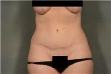 Tummy Tuck After Photo by Ellen Janetzke, MD; Bloomfield Hills, MI - Case 40913
