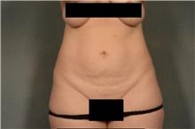 Tummy Tuck Before Photo by Ellen Janetzke, MD; Bloomfield Hills, MI - Case 40913
