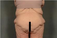 Body Lift Before Photo by Ellen Janetzke, MD; Bloomfield Hills, MI - Case 41301