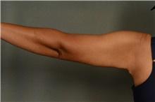 Arm Lift After Photo by Ellen Janetzke, MD; Bloomfield Hills, MI - Case 42771