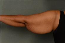 Arm Lift Before Photo by Ellen Janetzke, MD; Bloomfield Hills, MI - Case 42771