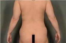Liposuction After Photo by Ellen Janetzke, MD; Bloomfield Hills, MI - Case 44087