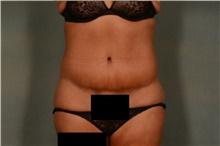 Tummy Tuck After Photo by Ellen Janetzke, MD; Bloomfield Hills, MI - Case 44649