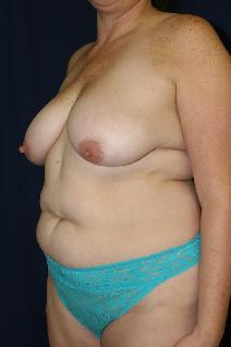 Tummy Tuck Before Photo by Paul Rhee, MD, FACS; Castle Rock, CO - Case 8407