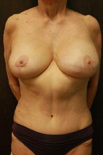Breast Reconstruction After Photo by Paul Rhee, MD, FACS; Castle Rock, CO - Case 9171