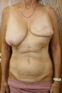 Breast Reconstruction Before Photo by Paul Rhee, MD, FACS; Castle Rock, CO - Case 9171