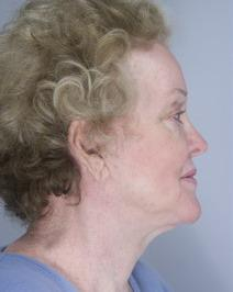 Facelift After Photo by David Kupfer, MD; San Diego, CA - Case 7237