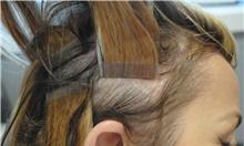 Hair Transplant Before Photo by Ellen Mahony, MD; Westport, CT - Case 39652