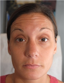 Botulinum Toxin Before Photo by Ellen Mahony, MD; Westport, CT - Case 40187