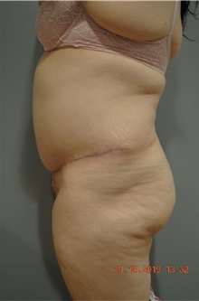Tummy Tuck After Photo by Ellen Mahony, MD; Westport, CT - Case 40949