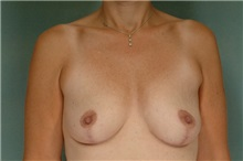 Breast Lift After Photo by Robert Zubowski, MD; Paramus, NJ - Case 23692