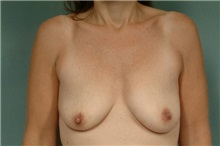 Breast Lift Before Photo by Robert Zubowski, MD; Paramus, NJ - Case 23692