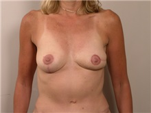 Breast Reconstruction After Photo by Robert Zubowski, MD; Paramus, NJ - Case 23693