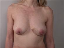 Breast Reconstruction Before Photo by Robert Zubowski, MD; Paramus, NJ - Case 23693