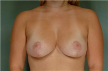 Breast Reduction After Photo by Robert Zubowski, MD; Paramus, NJ - Case 23694