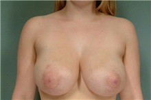 Breast Reduction Before Photo by Robert Zubowski, MD; Paramus, NJ - Case 23694
