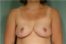 Breast Reduction After Photo by Robert Zubowski, MD; Paramus, NJ - Case 23695