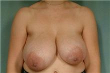 Breast Reduction Before Photo by Robert Zubowski, MD; Paramus, NJ - Case 23695