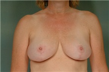 Breast Reduction After Photo by Robert Zubowski, MD; Paramus, NJ - Case 23696
