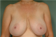 Breast Reduction Before Photo by Robert Zubowski, MD; Paramus, NJ - Case 23696