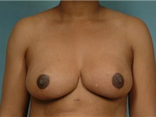Breast Reduction After Photo by Robert Zubowski, MD; Paramus, NJ - Case 23697