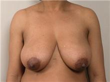 Breast Reduction Before Photo by Robert Zubowski, MD; Paramus, NJ - Case 23697