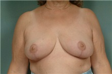 Breast Reduction After Photo by Robert Zubowski, MD; Paramus, NJ - Case 23698