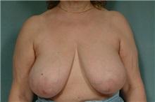Breast Reduction Before Photo by Robert Zubowski, MD; Paramus, NJ - Case 23698