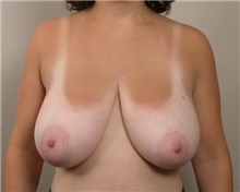 Breast Reduction Before Photo by Robert Zubowski, MD; Paramus, NJ - Case 23699