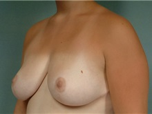 Breast Reduction After Photo by Robert Zubowski, MD; Paramus, NJ - Case 23699