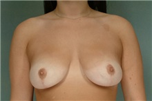 Breast Reduction After Photo by Robert Zubowski, MD; Paramus, NJ - Case 23700