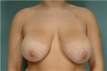 Breast Reduction Before Photo by Robert Zubowski, MD; Paramus, NJ - Case 23700