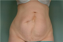Tummy Tuck Before Photo by Robert Zubowski, MD; Paramus, NJ - Case 23708
