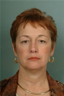 Eyelid Surgery Before Photo by Robert Zubowski, MD; Paramus, NJ - Case 23713