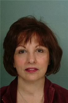 Facelift After Photo by Robert Zubowski, MD; Paramus, NJ - Case 23720