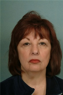 Facelift Before Photo by Robert Zubowski, MD; Paramus, NJ - Case 23720