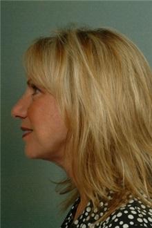Facelift After Photo by Robert Zubowski, MD; Paramus, NJ - Case 23721
